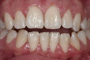 denti dopo la seduta di igiene orale