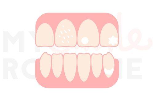 macchie denti bianche
