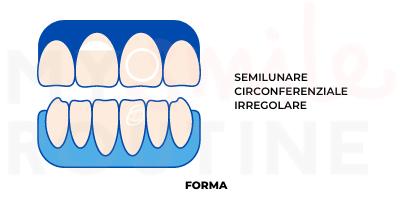 macchie bianche denti: forma