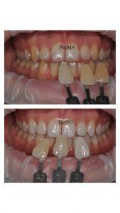 sbiancare i denti fa male?